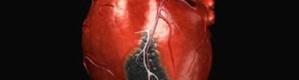 علماء روس يبتكرون طريقة سريعة وأمينة لتدمير الجلطة الدموية