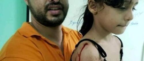 رصاص راجع كاد يقتل الطفلة ''منى'' وإستقرار رصاصة  في كتفها