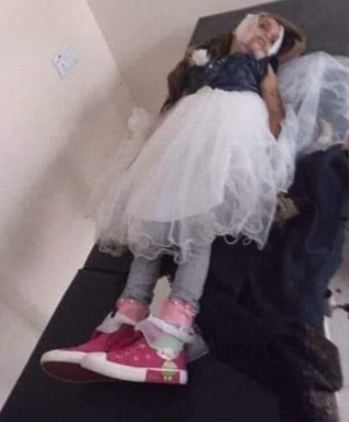 مقتل طفلة صغيرة ببيحان نتيجة لرصاص راجع بأحد الأعراس