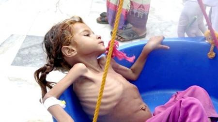 أكثر من خمسة ملايين طفل يمني يواجهون خطر المجاعة